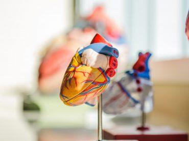 Ini Penyebab dan Penanganan Penyakit Jantung Koroner